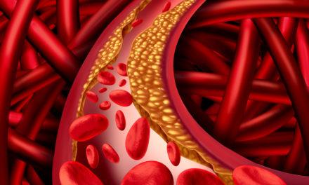 Arteriosclerosis and Vitamin K