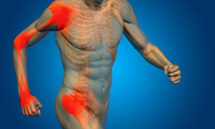 Glucosamine and Chondroitan: Beyond Arthritis