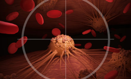 Cancer and Proteolytic Enzymes