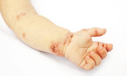 Infantile Eczema and Probiotics