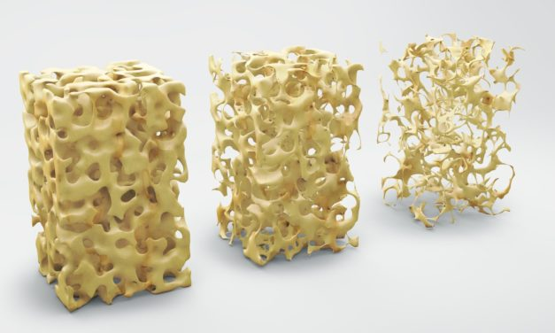 Improving Bone Mass in Celiac Disease Patients