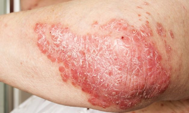 Psoriasis and Viamin D