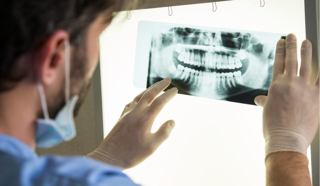 Migraines? Could it be Your Teeth?